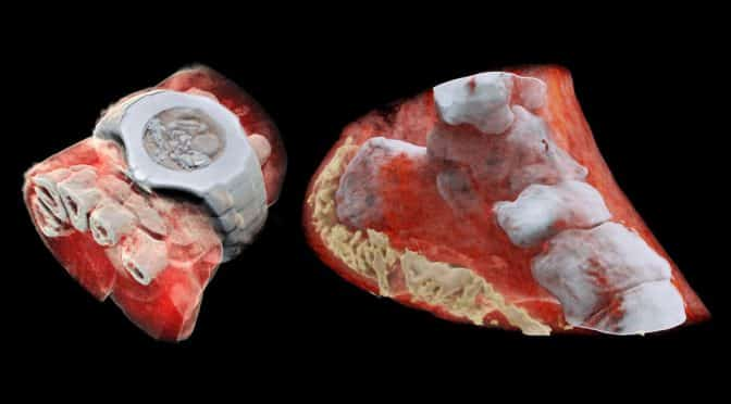 3D color x-ray images of the human body
